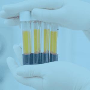 Plasma Enriched Protein Fort Lauderdale Fl