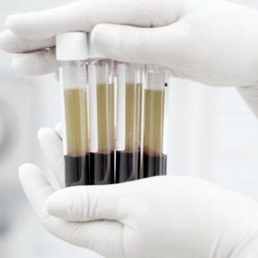 Plasma Enriched Protein Miramar FL